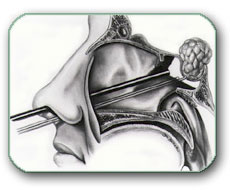Operacija tumora hipofize kroz nos